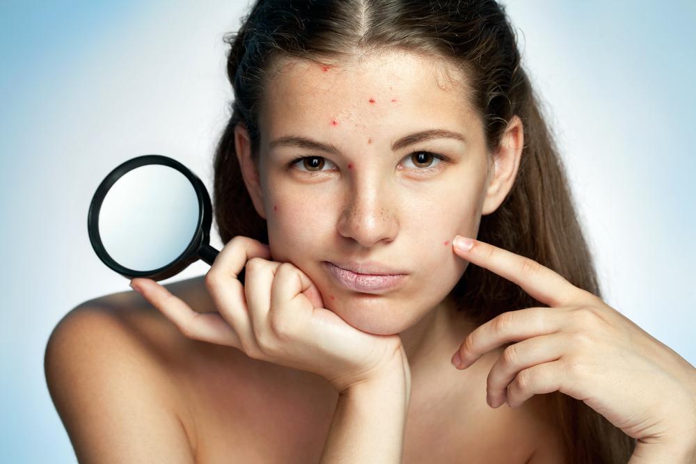 skin care untuk kulit kusam